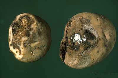 Sucha zgnilizna bulw ziemniaka